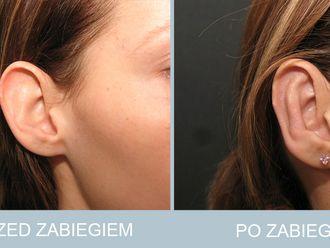 Korekcja uszu - 786657