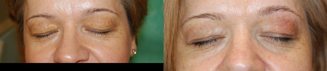 Przed i po: laserowe usuwanie kępek żółtych