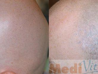 Usuwanie tatuażu-653155