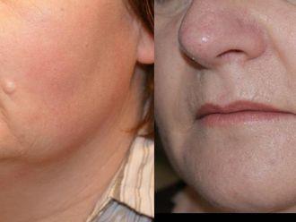 Laserowe usuwanie zmian skórnych-653158