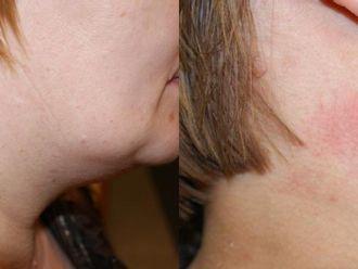 Laserowe usuwanie zmian skórnych-653165