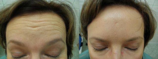 Przed i po: botoks