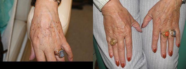 Przed i po: usuwanie plam