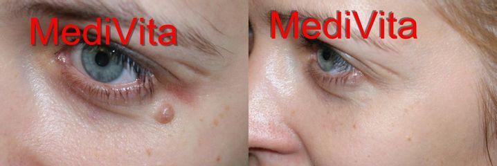 Przed i po: laserowe usuwanie brodawek