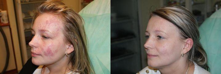 Przed i po: leczenie naczyniaków
