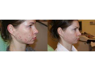 Laserowe leczenie trądziku - przed i po