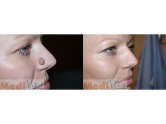 Laserowe usuwanie zmian skórnych-685392