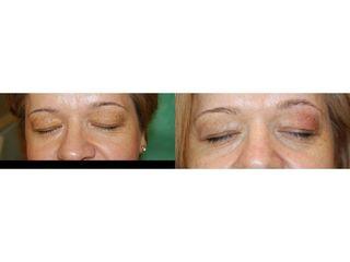 Usuwanie zmian skórnych na powiekach - przed i po
