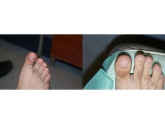 Operacje korekcyjne i naprawcze stopy-685432