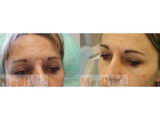 Laserowe usuwanie blizn - przed i po
