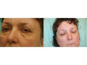 Laserowe usuwanie zmian skórnych-685442