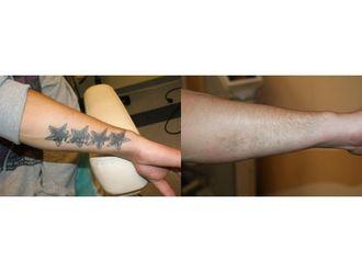 Usuwanie tatuażu-685443