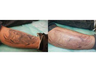 Laserowe usuwanie tatuażu - przed i po kilku sesjach