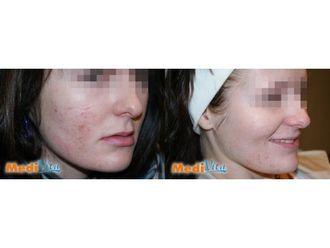 Laserowe leczenie trądziku-685445