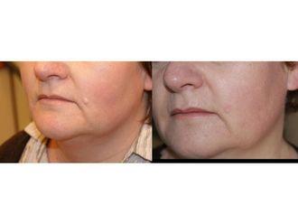 Laserowe usuwanie zmian skórnych-685446