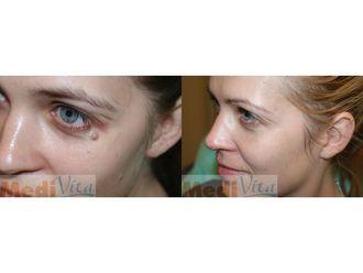 Laserowe usuwanie zmian skórnych - 685452