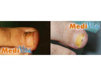 Operacje korekcyjne i naprawcze stopy-685453