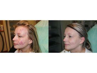 Laserowe usuwanie zmian skórnych-685457
