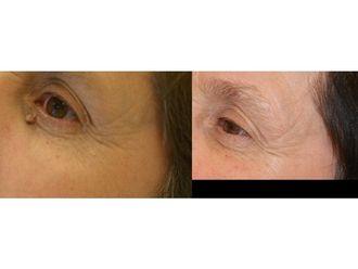 Laserowe usuwanie zmian skórnych-685458