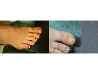 Operacje korekcyjne i naprawcze stopy-685459