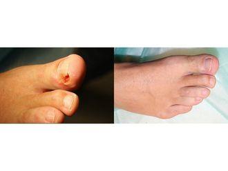Operacje korekcyjne i naprawcze stopy-685460