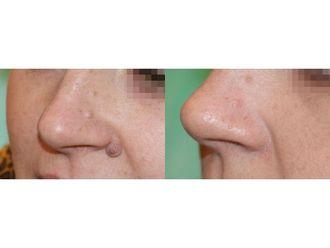 Laserowe usuwanie zmian skórnych - 685462