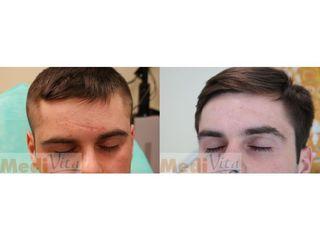 Usuwanie blizn - przed i po