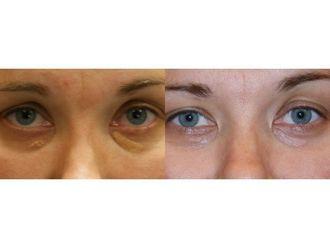 Laserowe usuwanie zmian skórnych-685473