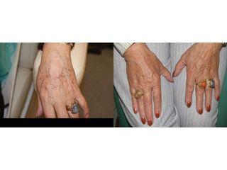 Odmładzanie dłoni - przed i po