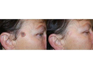 Laserowe usuwanie zmian skórnych - przed i po