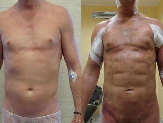 Lipofiling - przeszczep tłuszczu - 653701