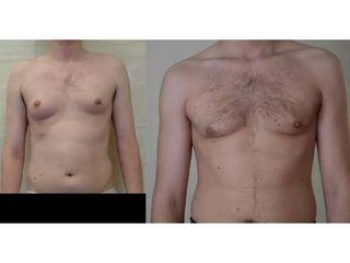 Przed i po - korekta ginekomastii