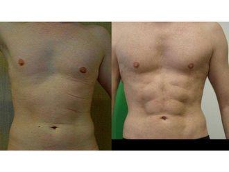 Liposukcja ultradźwiękowa-687168