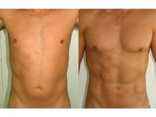 Przed i po - liposukcja