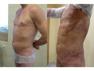 Przed i po - lipomioplastyka