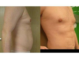 Liposukcja ultradźwiękowa-687188