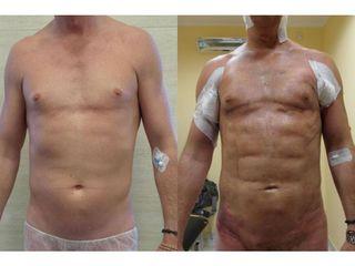 Prze i po - liposukcja