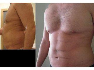 Przed i po - Vaser Lipo