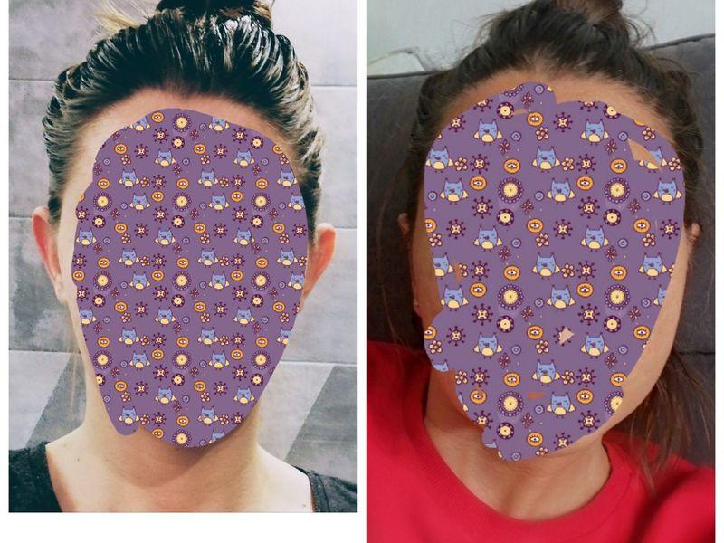Korekta uszu nićmi Aptos - spektakularny efekt