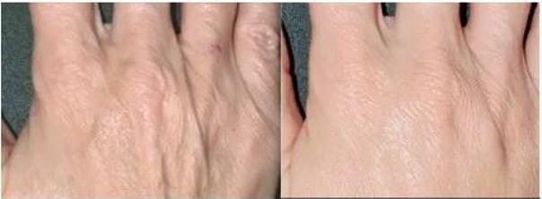 Odmładzanie skóry dłoni preparatem Radiesse - dr Katarzyna Mudel, Ars Estetica