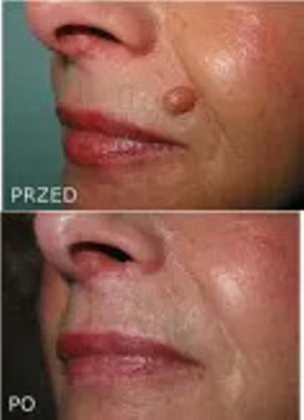 Laserowe usuwanie zmian skórnych: przed i po