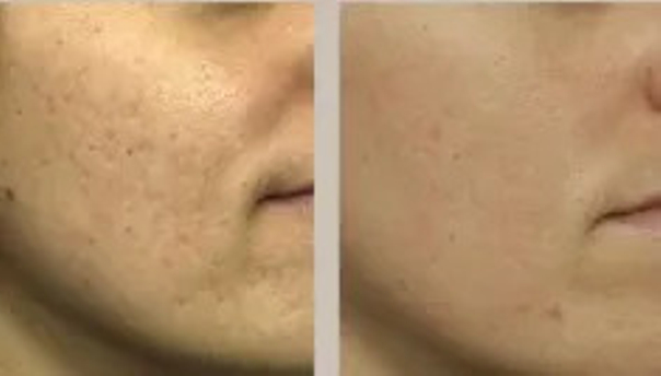 Laserowe leczenie trądziku: przed i po