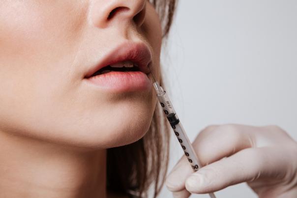 Powiększanie ust kwasem hialuronowym - igła