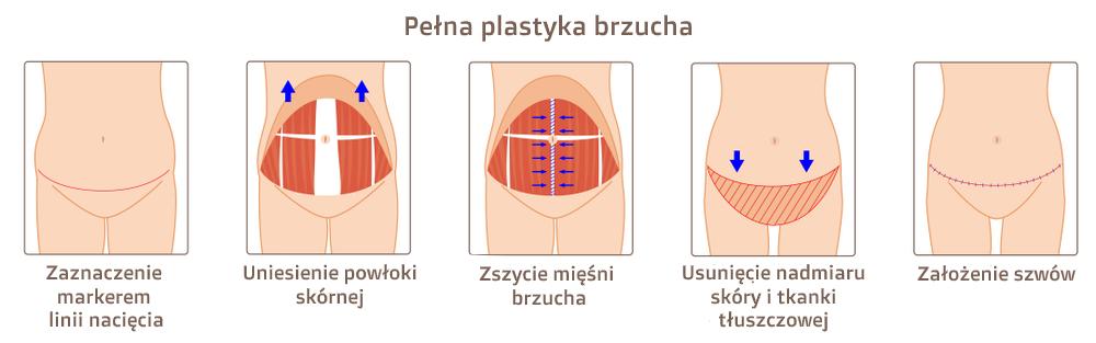 Schemat całkowitej plastyki brzucha