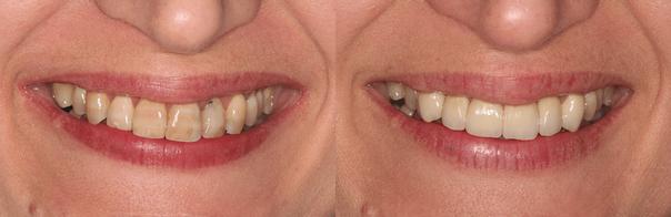 Korony na przednich zębach górnych