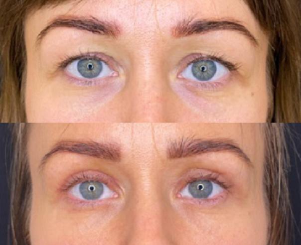 Blefaroplastyka: przed i po