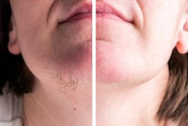 Usuwanie włosów z twarzy elektrolizą