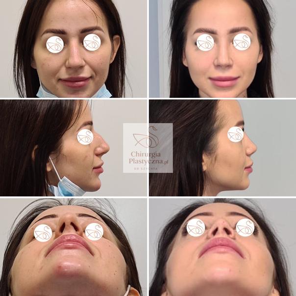 Korekta nosa metodą zamkniętą: przed i po