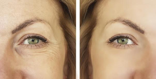 Face lifting - przed i po