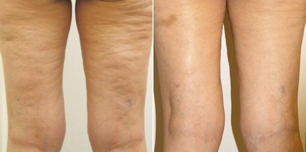 Efekty termoliftingu: lifting skóry ud